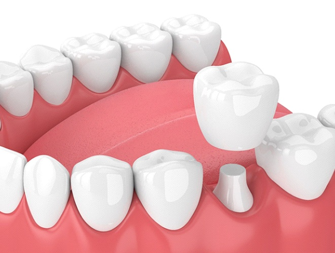 Illustration of dental crown in Midlothian being placed on tooth