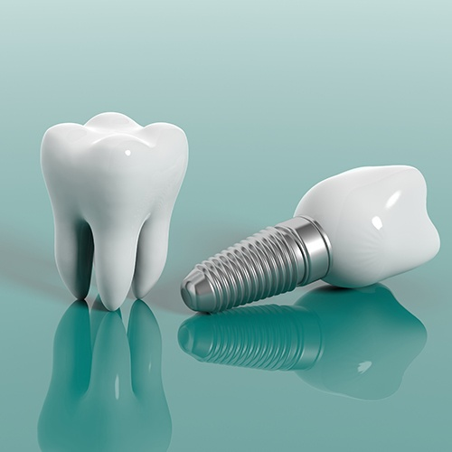 Animated tooth and implant replacement tooth compared